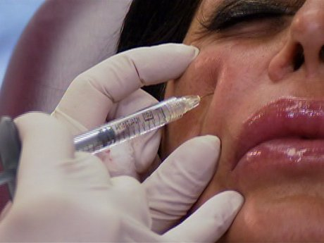 Big Ang gets some routine botox done.